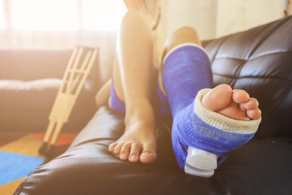 Person laying down with left leg in a blue cast flat on the couch and the right leg rested upwards.